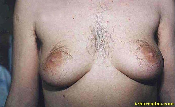 Правда ли,что волосатая грудь-придаёт уверенности и сил? фотка внутри.